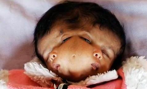 mutated 2 Two headed baby Fukushima Radiation Nuclear Chernobyl Iraq depleted Uranium
