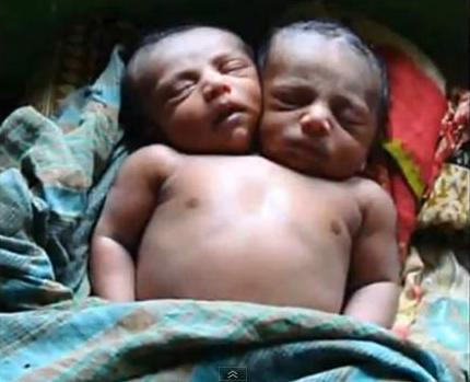 Two 2 headed Mutated baby deformed radiation radioactive fallout depeted Uranium Fukushima fallout India World wide